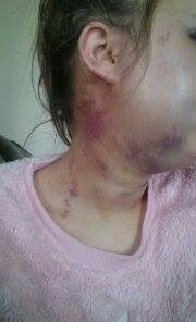 Steph Louise showing terrible injuries after her boyfriend beat her when she refused to have sex with him Taken from her open FB page  https://www.facebook.com/stephanie.littlewood.796?hc_ref=SEARCH